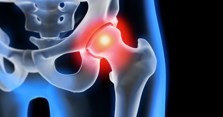 La coxartrosi o semplicemente artrosi dell'anca