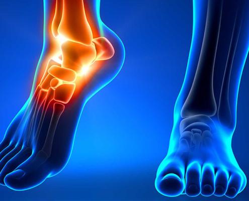 Distorsione caviglia storta caviglia